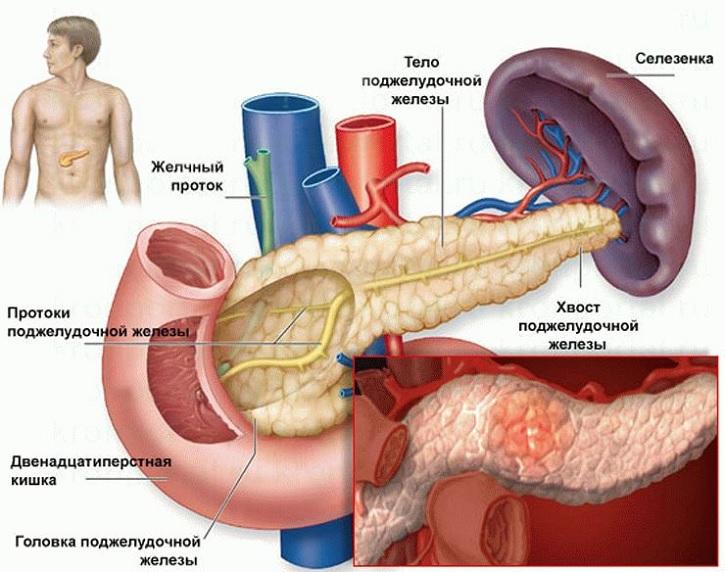 Признаки приступа панкреатита у женщин
