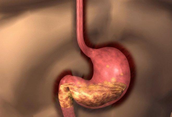 Смешанные заболевания желудка