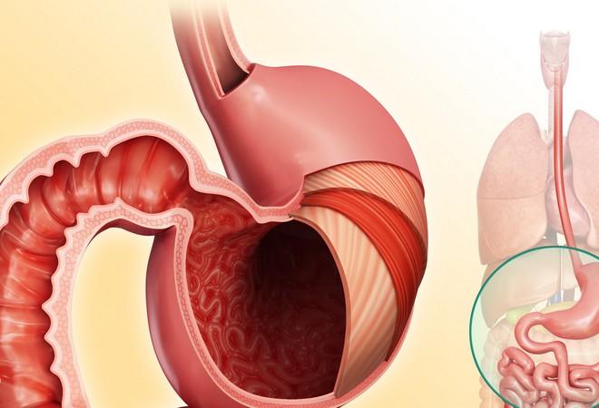 Язвенный гастрит: симптомы, лечение желудка, острый
