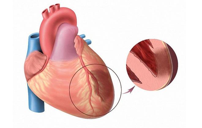Трансмуральная разновидность инфаркта