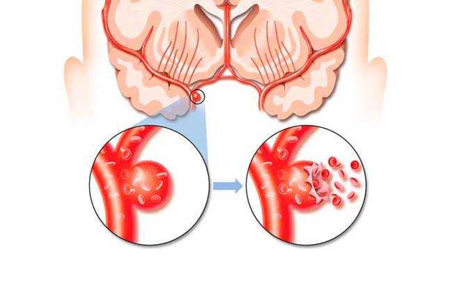 Аневризмы головного мозга