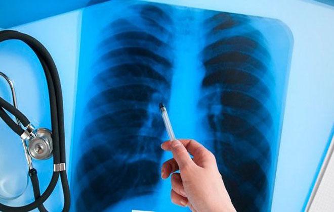 Болезнь туберкулеза