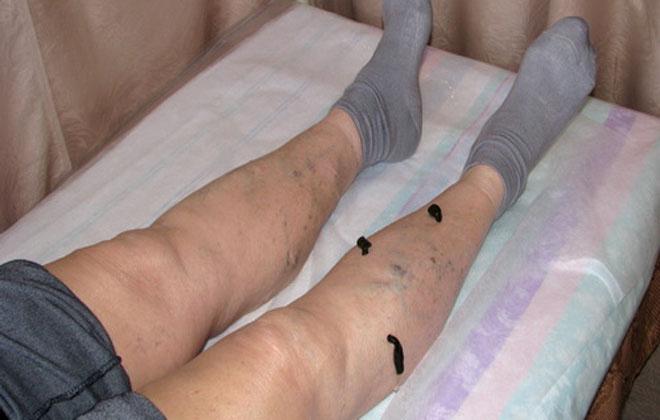 Гирудотерапия ног