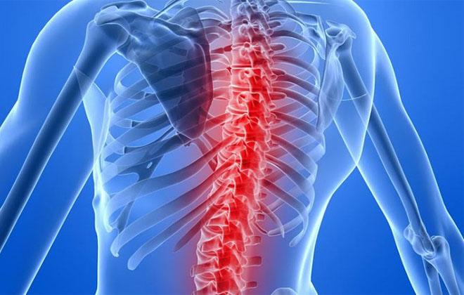 Инсульт спины