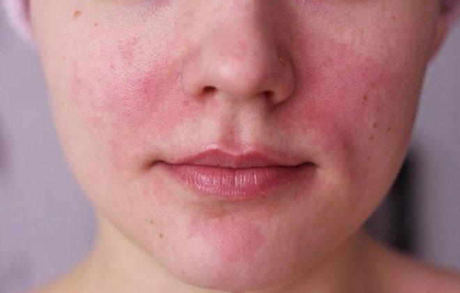 Купероз на лице