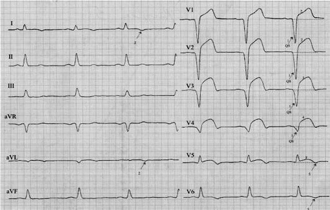 Мелкоочаговый субэндокардиальный инфаркт