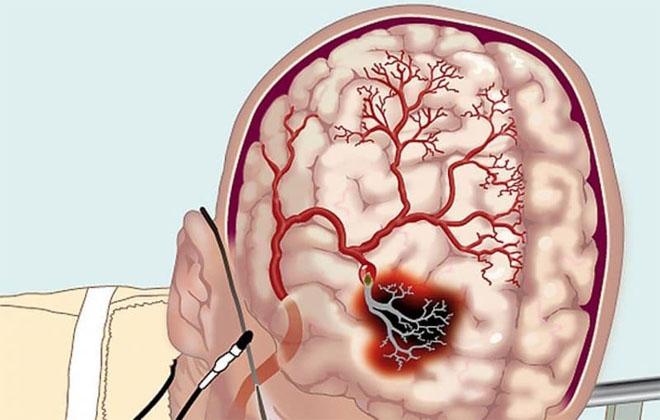 Образование сгустков крови в мозгу