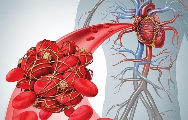 Осложнения антикоагулянтного лечения