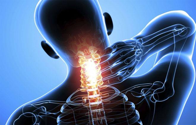 Острая боль в шее