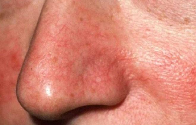 Проблемная кожа на носу