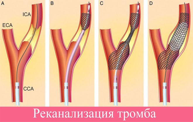 Проблемы тромба