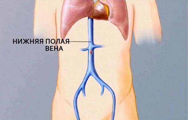 Синдром полой вены