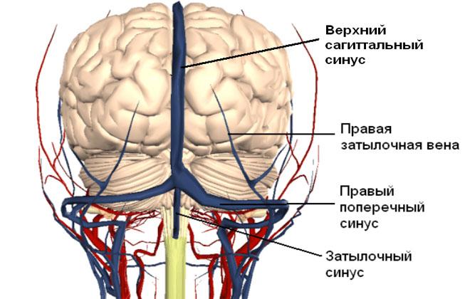 Синусы мозга