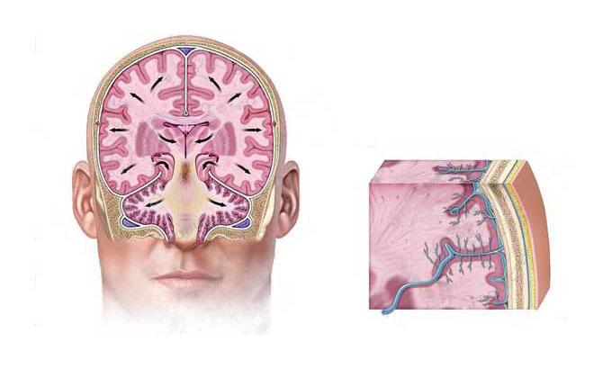 Снятия отечности тканей мозга