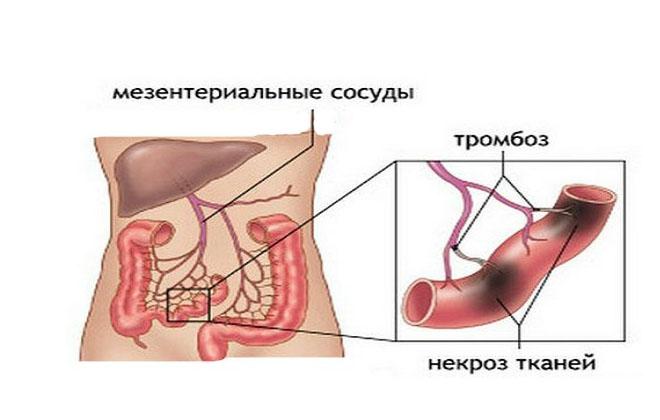 Тип тромбоза