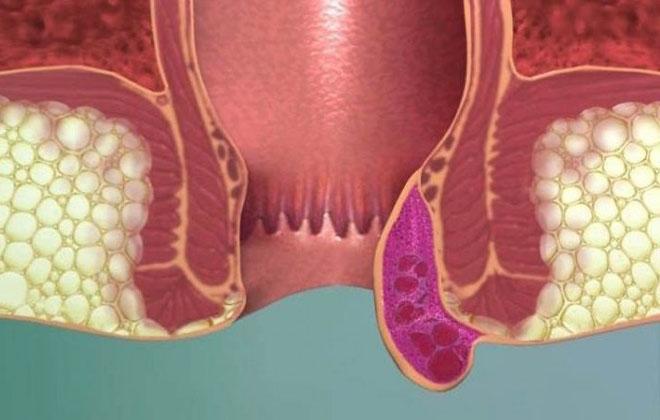 Удаление тромба геморроидального узла