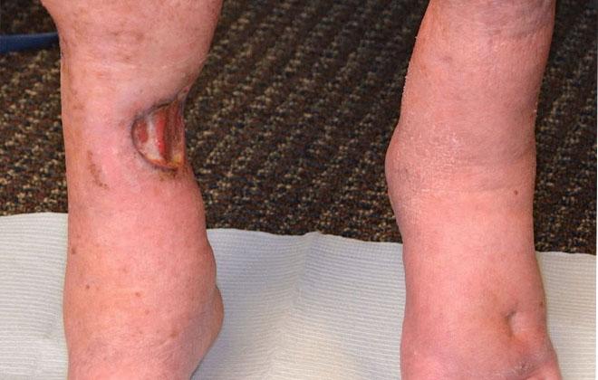 Язва на ноге