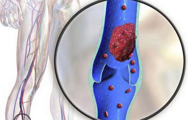 Заболевание тромбофлебит