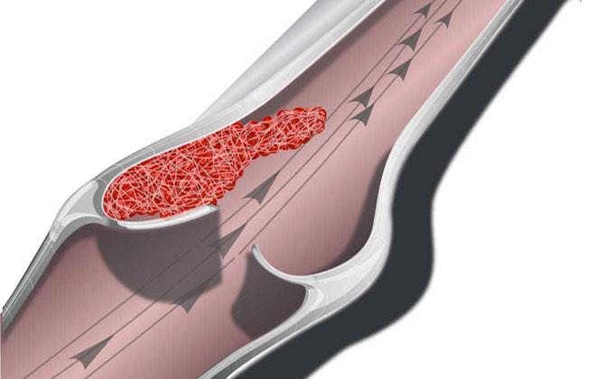 Застой крови на ноге