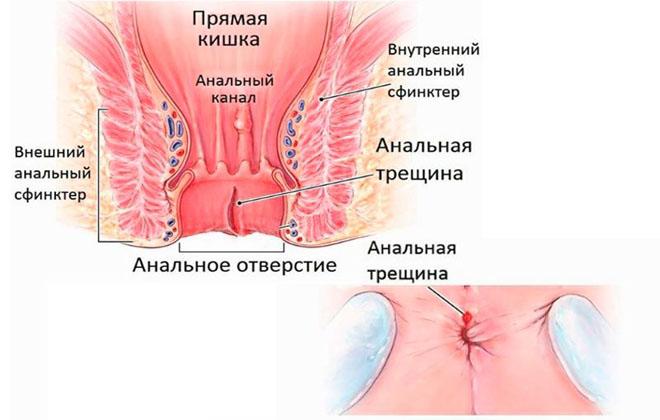 Анальные трещины у беременной