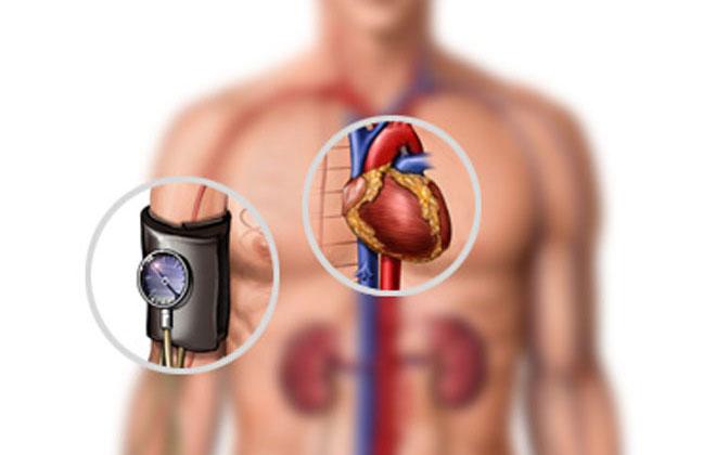 Болезнь гипертония