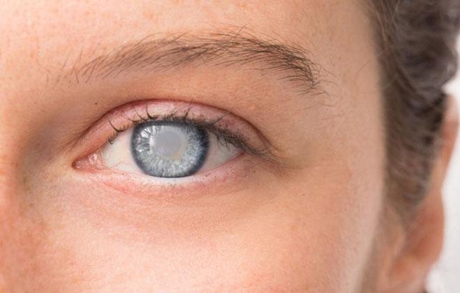 Болезнь глаукома