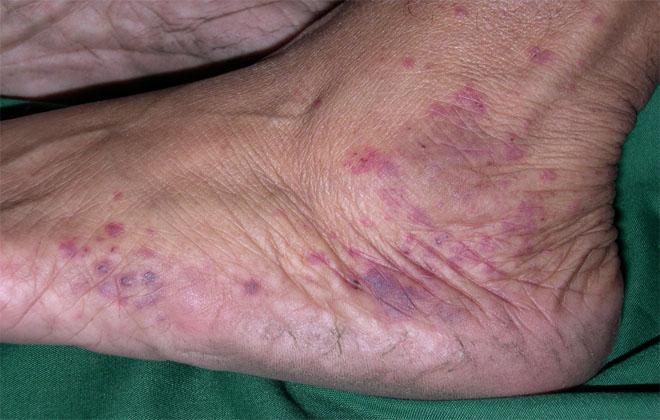 Болезнь кожи ног