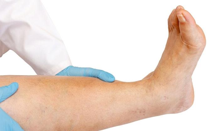 Болезнь в ноге