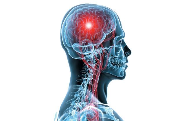 Черепно-мозговые травмы (боль в голове)