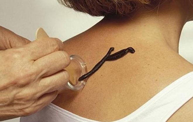 Гирудотерапия помогает