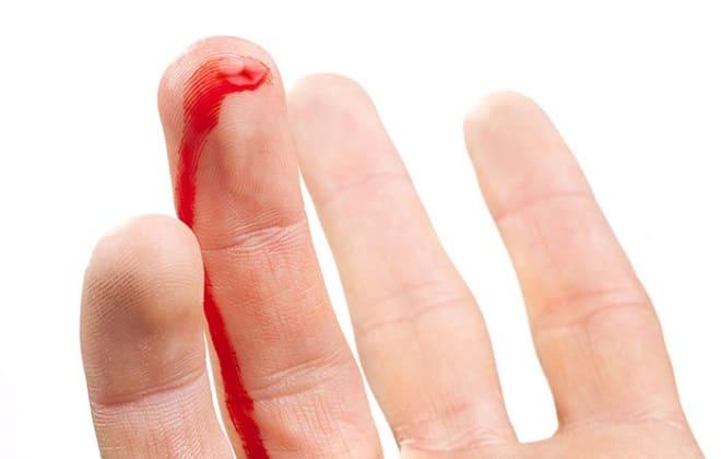 Из пальца идет кровь