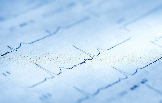 Кардиограмма сердечной работы