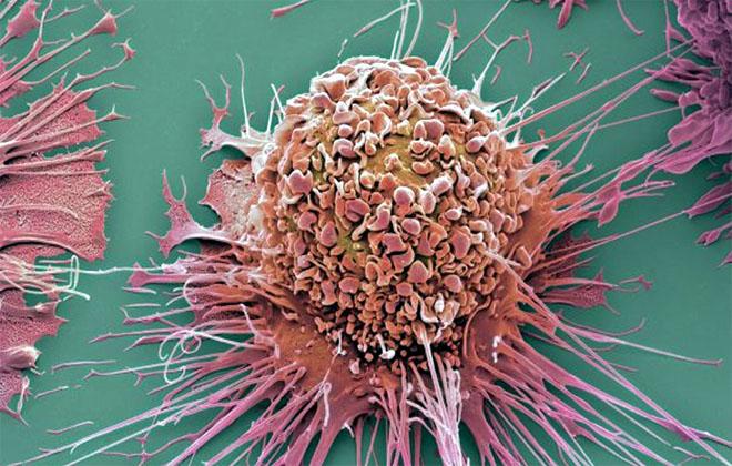 Клетки лейкимии