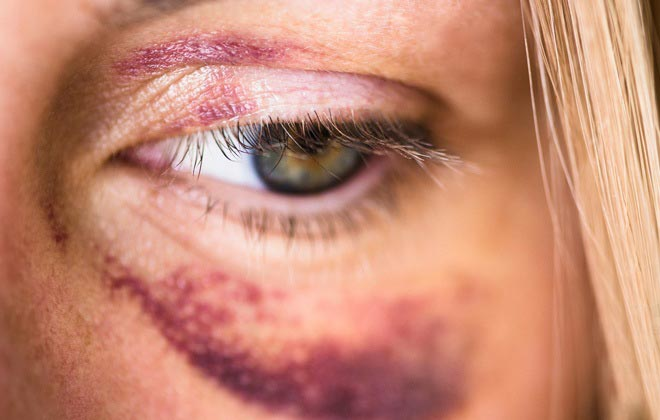Кровоподтеки вокруг глаза
