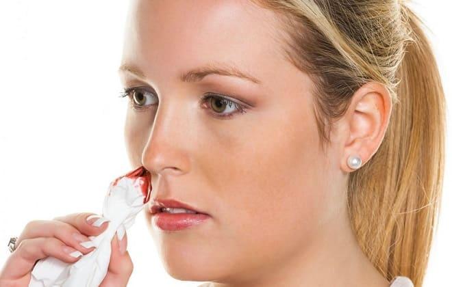 Кровотечение при миелоидной форме