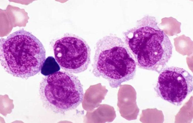 Мегакариобластный тип лейкоза