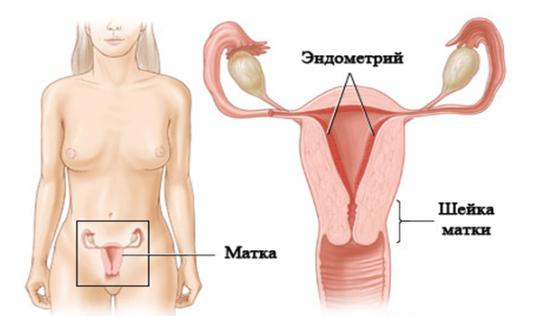 Отслоение тканей эндометрия