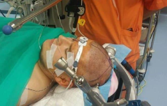 Подготовка к операции по трепанации черепной коробки