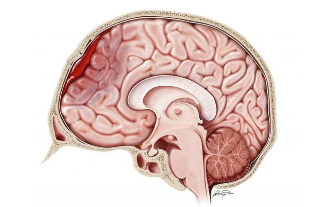 Поражение в мозгу