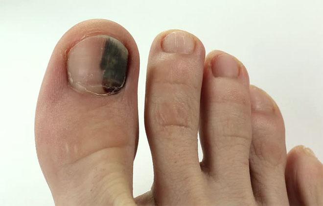 Посинение гематомы на ноге