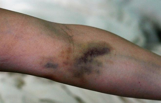 Появление синяка на руке