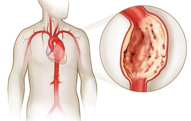 Проявление расширения артерии