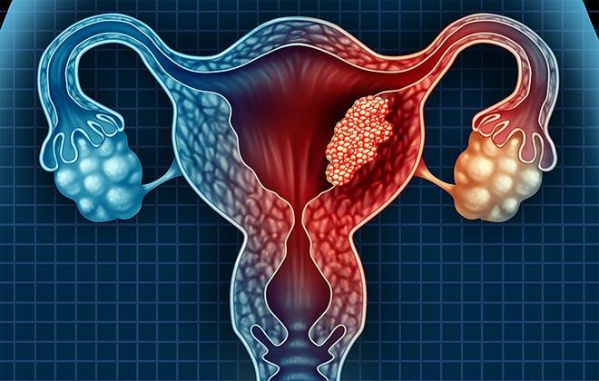 Рак шейки и тела матки