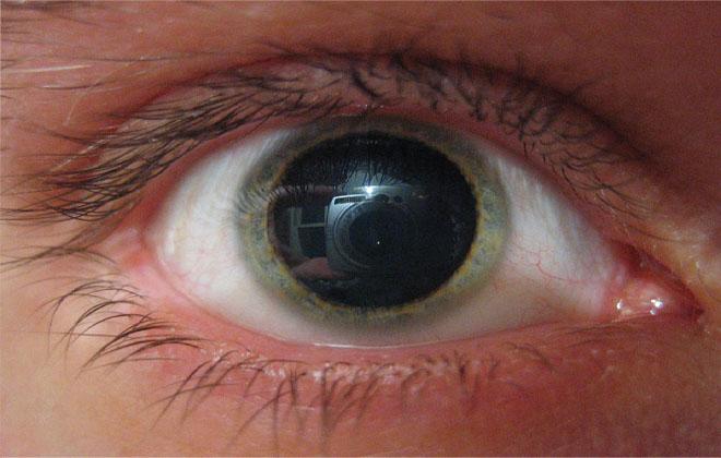 Расширение зрачка глаза