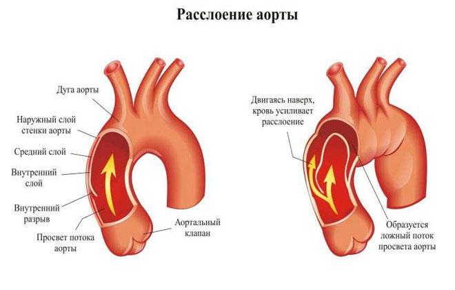 Разрыв аорты
