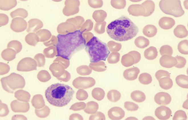 Рефрактерная анемия