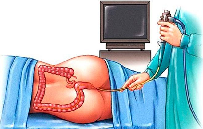 Ректороманоскопия для девушки