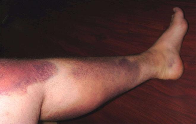 Сильный синяк на ногах