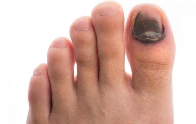 Синий палец