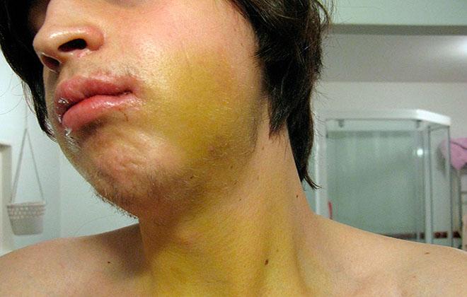 Синяк после вырванного зуба